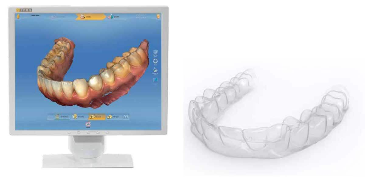 Invisalign in Midtown East Manhattan