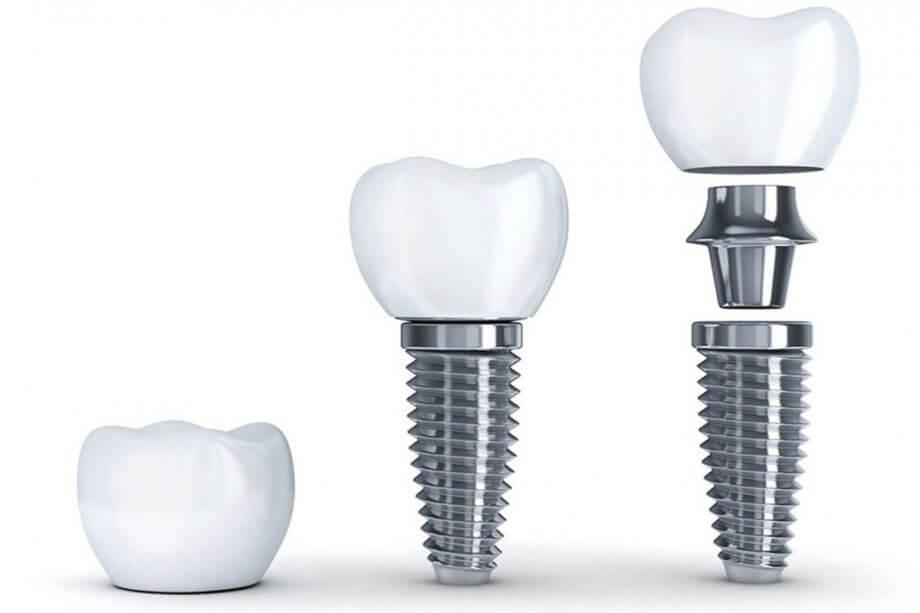 Dental Implants: Myths vs. Facts