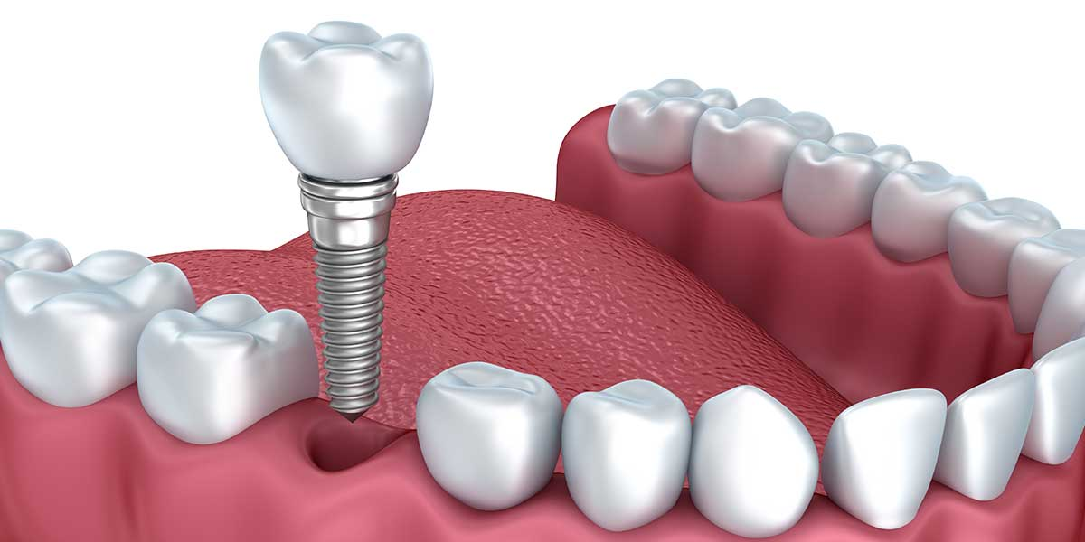 Dental Implants in Midtown East Manhattan