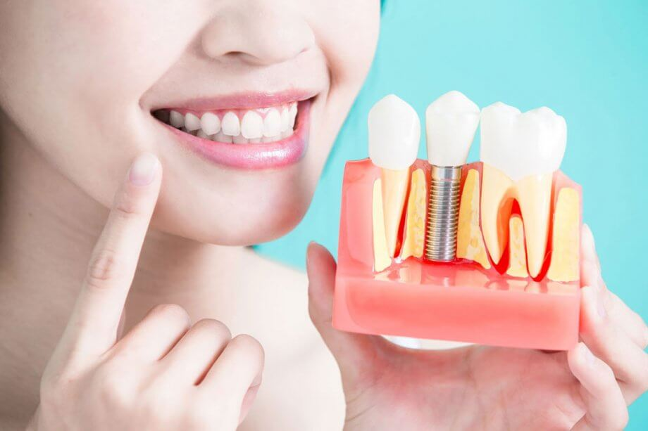 The five benefits of dental implants