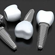 Dental Implants in Midtown East